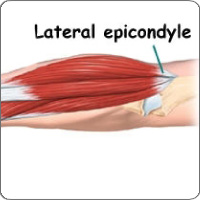 Lateral epicondyle anatomy