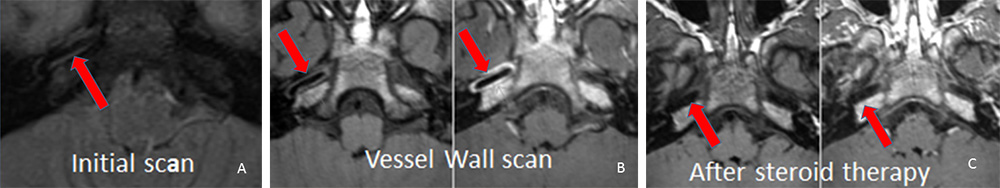 Stroke case study images