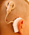Cochlear implant device