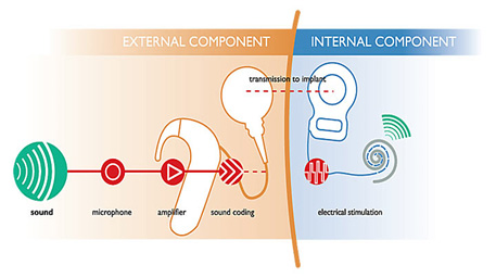 Cochlear implant – how it works